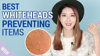 What causes Whiteheads? | How to prevent Whiteheads