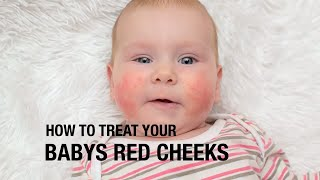 How to treat your baby's red cheeks?