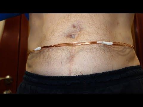 Операция перелом позвоночника грудного отдела