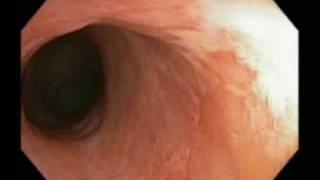 Asymptomatic distal colitis sparing lower rectum