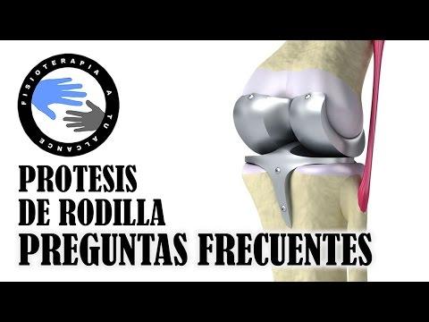 Esta bursitis prevención del tratamiento