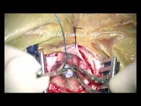 Chirurgie Gelenke Wucherungen ersetzen
