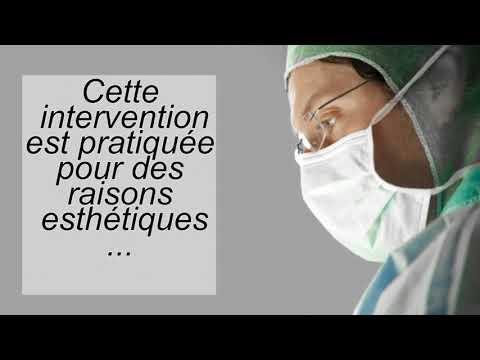 Le traitement de la varicosité loblitération hertzienne les rappels
