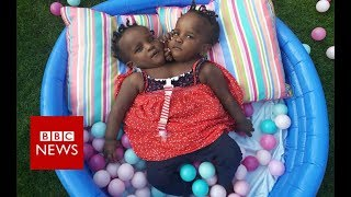 What is the future for these conjoined twins? - BBC News