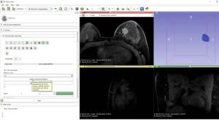 3D Slicer Tutorial - Segmentation Wizard
