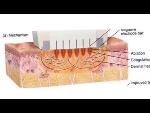 Unguenti per cura di unulcera varicosa