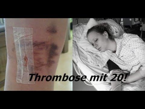Portalvene die Thrombose
