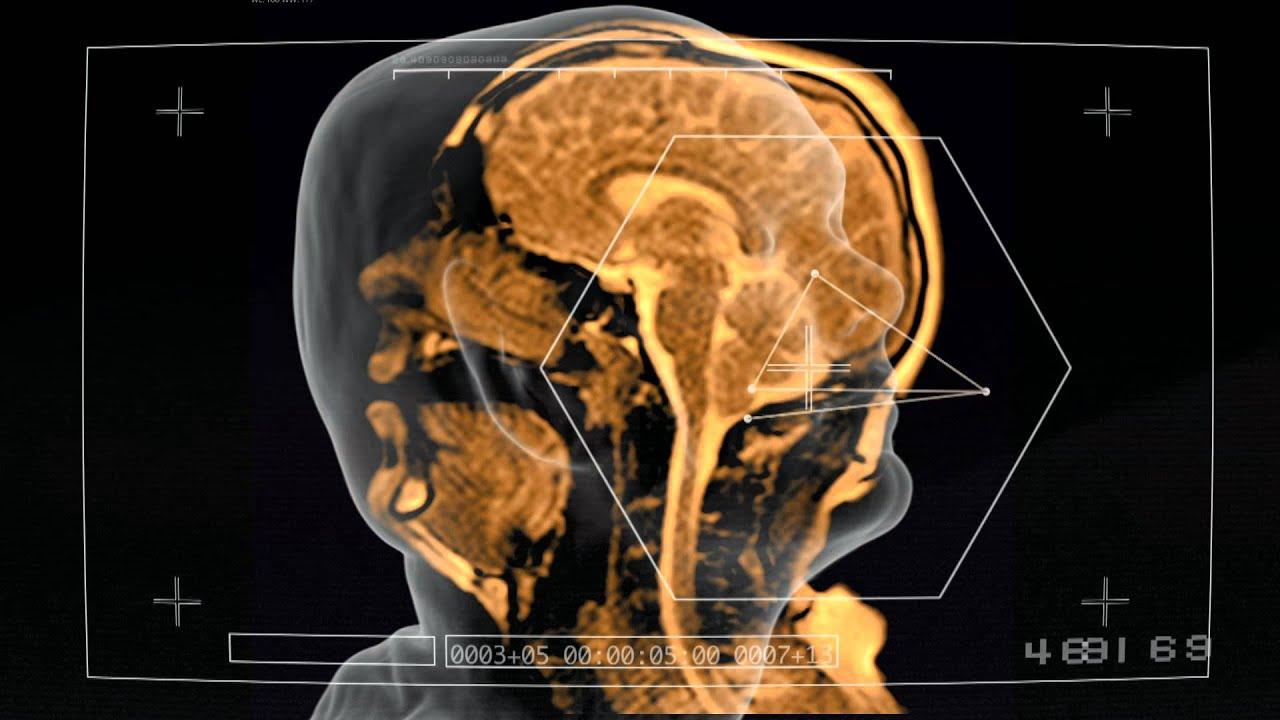 This Music Video Was Filmed Inside An MRI Machine