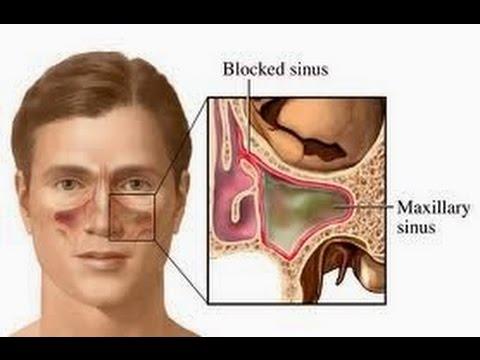 Video Cara Legakan Hidung Tersumbat Dalam Waktu 1 Menit