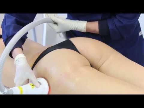 Schultergelenkarthrose Behandlung von Volksmedizin zu Hause