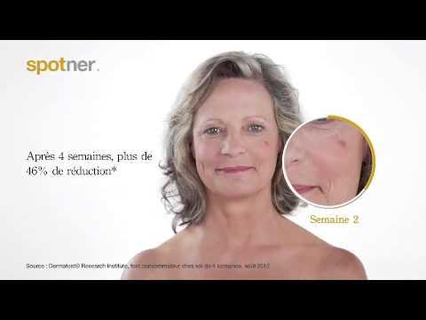 Wie den Pigmentflecken die Räte des Kosmetikers entgehen wird