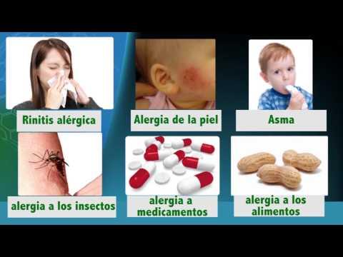 Medicina para todos: Alergias