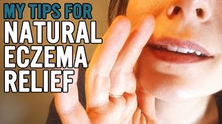 Natural Eczema Relief
