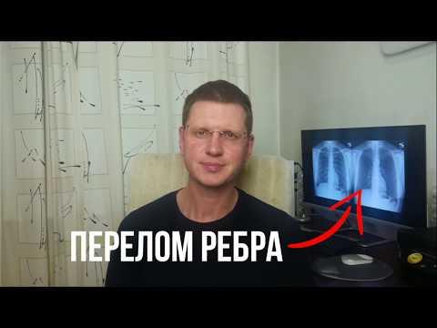 Как лечить перелом ребра?