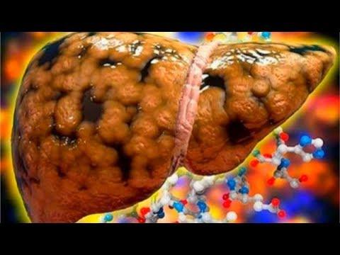 Таргетная терапия метастаз в печени