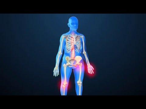 Meggyógyítottam a térd artrózisát