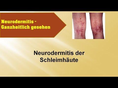 Das Verzeichnis der Präparate für die Behandlung der Schuppenflechte
