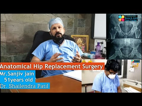 Hip Replacement Surgery of Sanjiv Jain 51yrs Old Thane, Mumbai | Dr. Shailendra Patil Thane & Mulund
