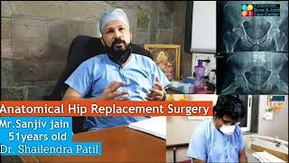 Hip Replacement Surgery of Sanjiv Jain 51yrs Old Thane, Mumbai