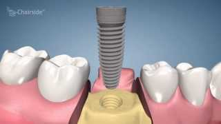 Dental Implant Procedure - One Stage