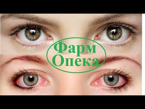 Покраснение глаз. Причины и способы лечения