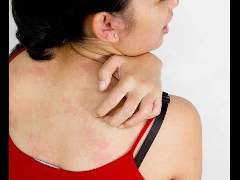 Симптомы гепатита с у детей симптомы и признаки