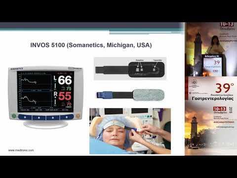 Βελεγράκη Μ. - Εκτίμηση της εγκεφαλικής οξυμετρίας με τη χρήση της IN VIVO οπτικής Σπεκτροσκ;oπησης (INVOS) σε ασθενείς που υποβάλλονται σε ERCP υπό βαθιά καταστολή