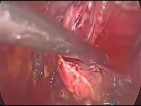 การผ่าตัดหลอดเลือดใน RNTSH