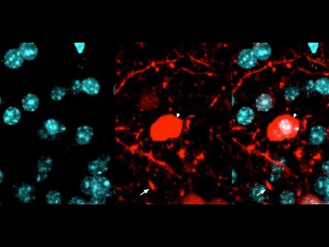 Ученые впервые засняли на видео, как мозг избавляется от погибших нейронов