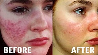 How I Cleared My Hyperpigmentation and Acne Marks At Home