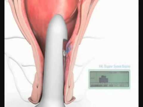 Que pour traiter la prostatite bactérienne chronique