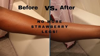 HOW TO GET RID OF STRAWBERRY SKIN PERMANENTLY (BUY NOW: LINK IN DESCRIPTION BOX)| JASMINE AND SIMONE