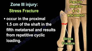 Proximal Fifth Metatarsal Fractures - Everything You Need To Know - Dr. Nabil Ebraheim