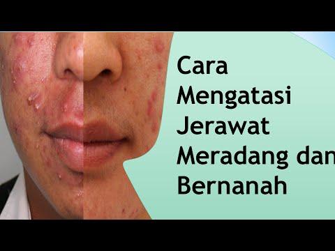 Video Cara Mengatasi Jerawat Meradang dan Bernanah