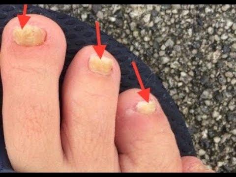 Die Gründe nogtewogo gribka auf den Beinen