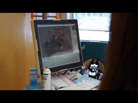 Il trattamento della prostatite Astana