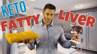 Does Keto Heal a Fatty Liver - Everything You Should Know