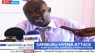Samburu Hyena Attack: Girl sustain severe facial, scalp injuries after a brutal attack by Hyena