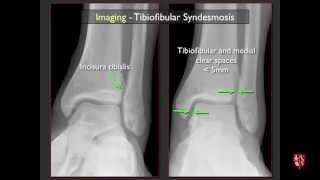 Imaging Of The Tibiofibular Syndesmosis And High Ankle Sprain