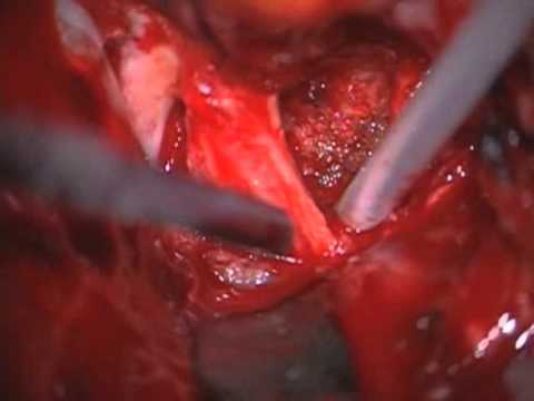 Endoscopically assisted transbasal and middle fossa extradural transcavernous approach