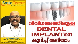 Different types of dental implant - Video