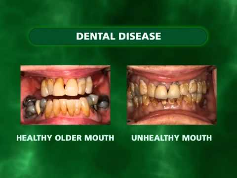 Oral Health Basics - Dental Disease
