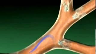 Новый метод лечения эмфиземы легких