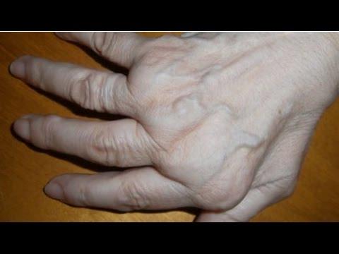 Flexión de la prótesis de rodilla