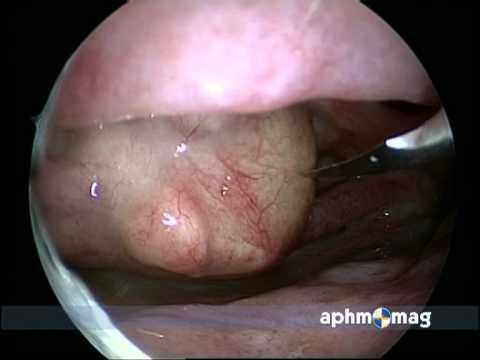 Vindeca artroza articulației gleznei