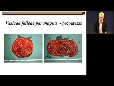 Natūralus gimdymas su hipertenzija