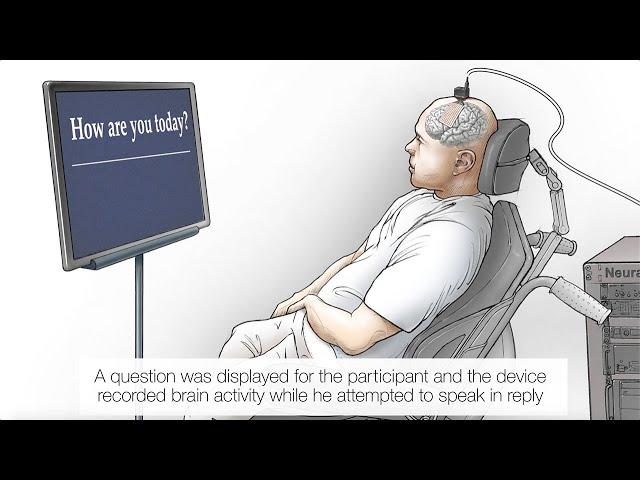В США впервые разработали нейропротез, способный превращать мысли в текст