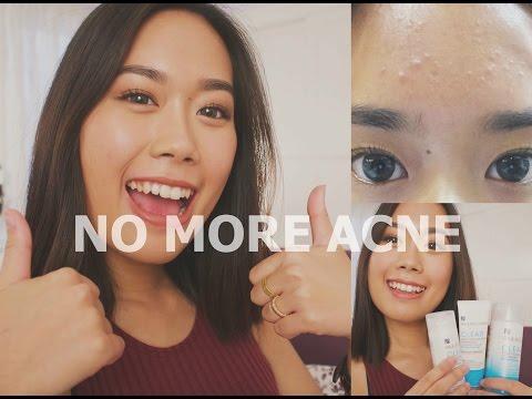 HOW I GOT RID OF ACNE | Acne.org & Paula's Choice Review