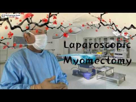 Laparoskopowa miomektomia w przypadku mięśniaka tylnej ściany macicy z towarzyszącą endometriozą.