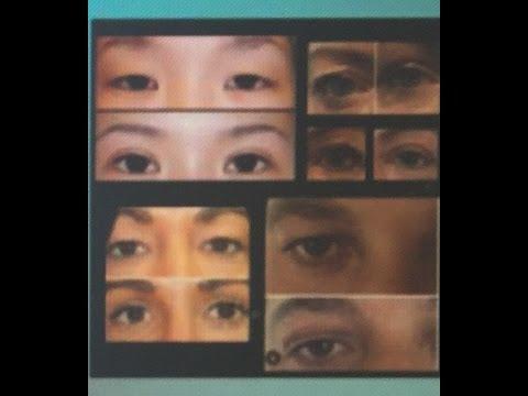 PlexR eyelid lift at Vie Aesthetics